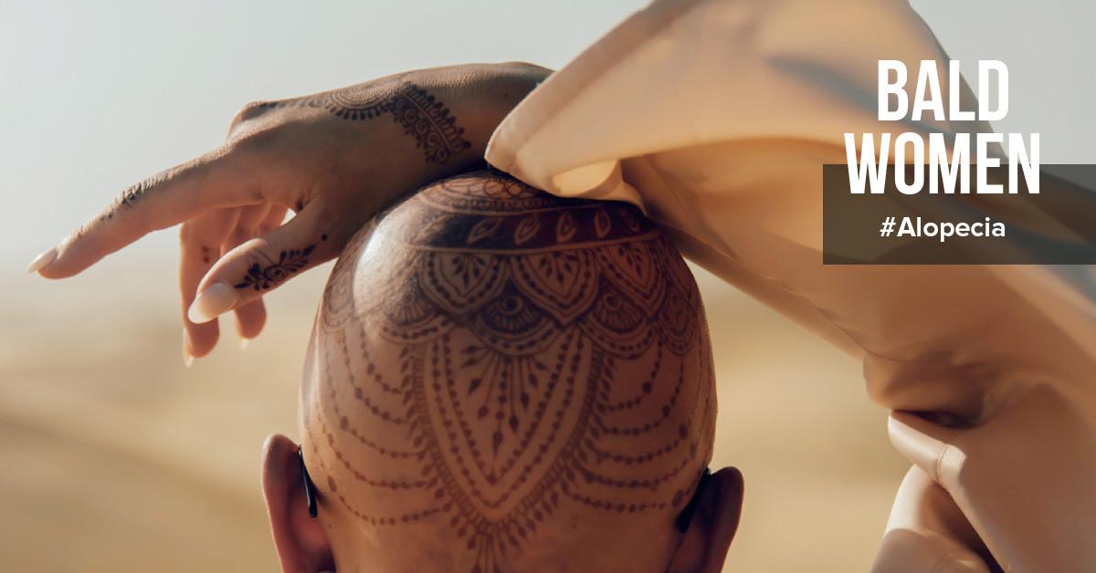 Alopecia - Bald Woman